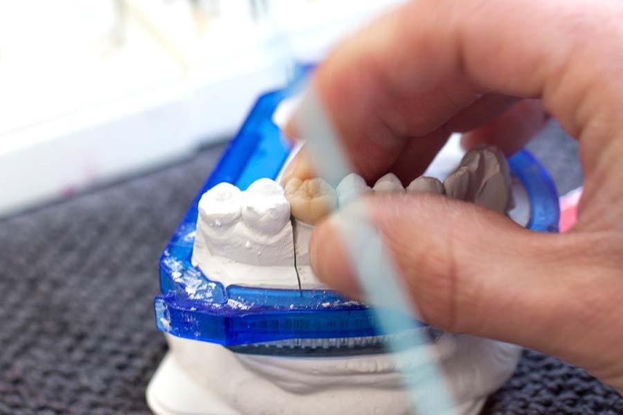 Natürlicher Zahnersatz