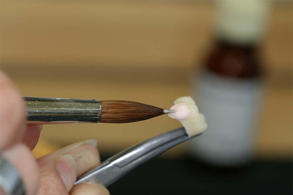 Zahntechnik: Handwerk mit künstlerischem Anspruch