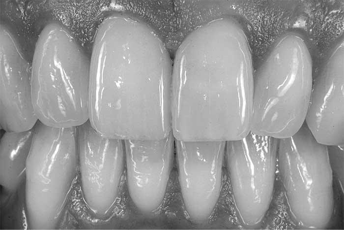 Zahnersatz Material vergleich